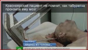 Красноярские нейрохирурги помогли мужчине с торчащей из головы металлической табуреткой.