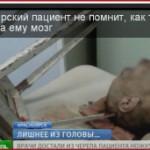 Красноярские нейрохирурги помогли мужчине с торчащей из головы металлической табуреткой
