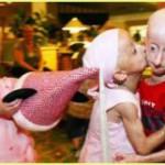 Шок! Самые страшные неизлечимые болезни человечества! Фото